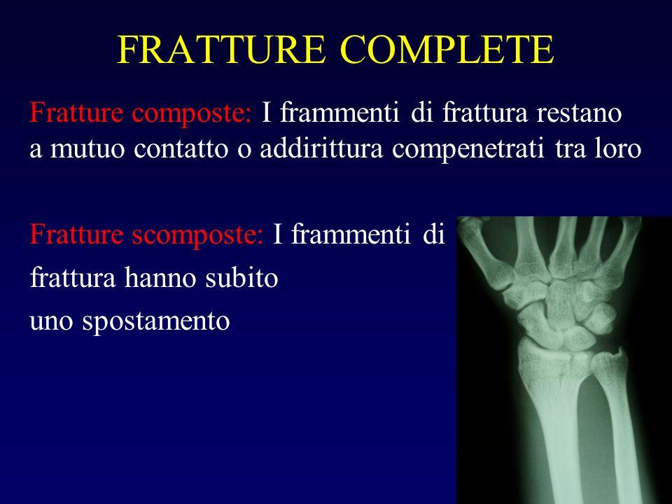 FRATTURE COMPLETE Fratture composte: I frammenti di frattura restano a mutuo contatto o addirittura compenetrati tra loro Fratture scomposte: I framme