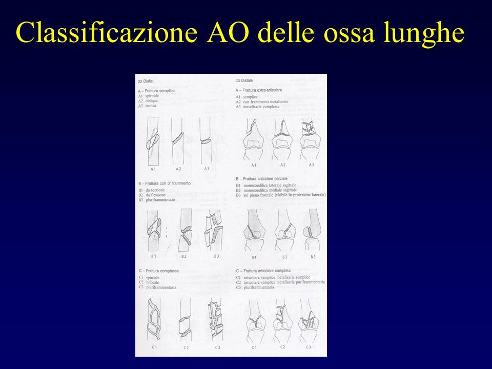 Classificazione AO delle ossa lunghe