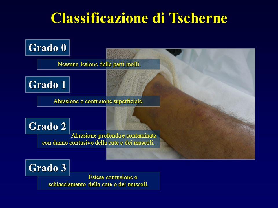 Classificazione di Tscherne Abrasione o contusione superficiale. Grado 1 Abrasione profonda e contaminata con danno contusivo della cute e dei muscoli