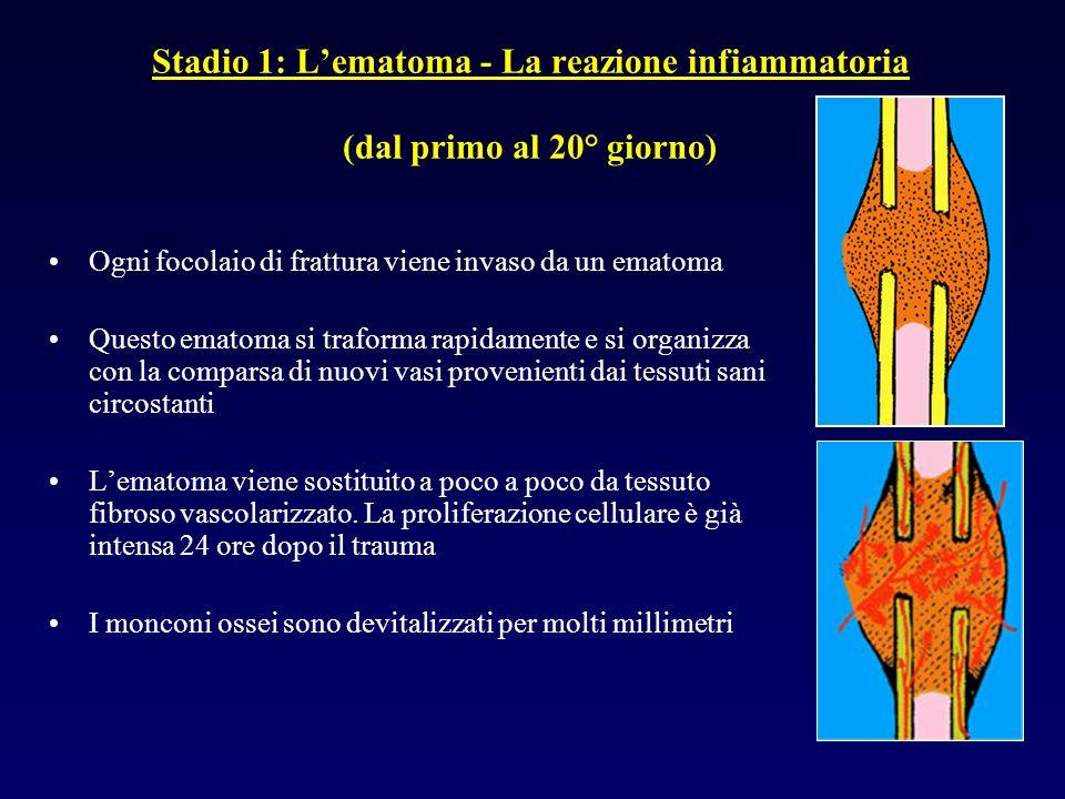 Stadio 1: Lematoma - La reazione infiammatoria (dal primo al 20° giorno) Ogni focolaio di frattura viene invaso da un ematoma Questo ematoma si trafor