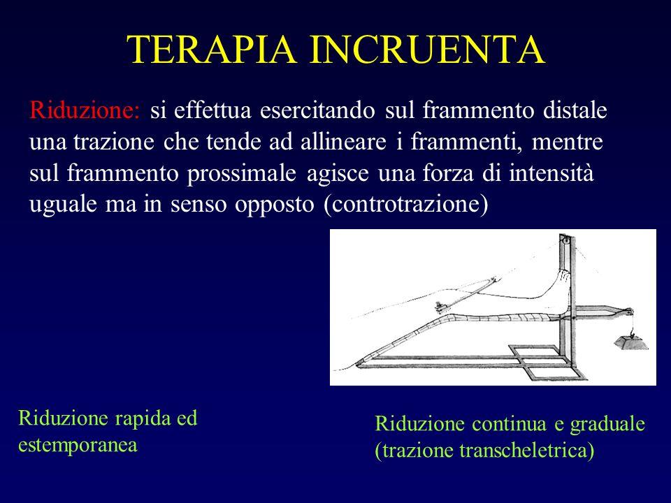 TERAPIA INCRUENTA Riduzione: si effettua esercitando sul frammento distale una trazione che tende ad allineare i frammenti, mentre sul frammento pross
