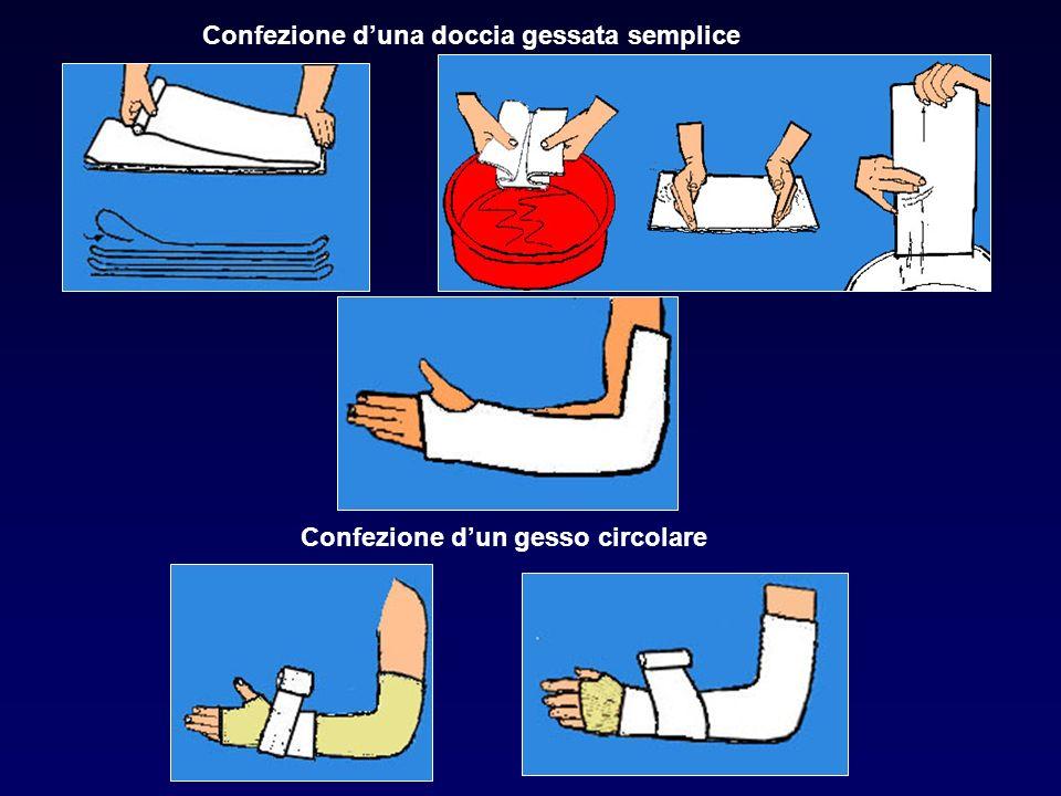 Confezione duna doccia gessata semplice Confezione dun gesso circolare