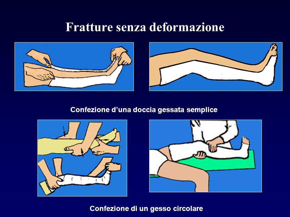 Fratture senza deformazione Confezione duna doccia gessata semplice Confezione di un gesso circolare