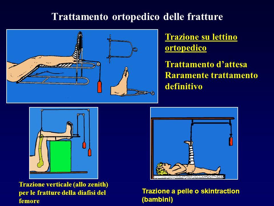 Trattamento ortopedico delle fratture Trazione su lettino ortopedico Trattamento dattesa Raramente trattamento definitivo Trazione verticale (allo zen