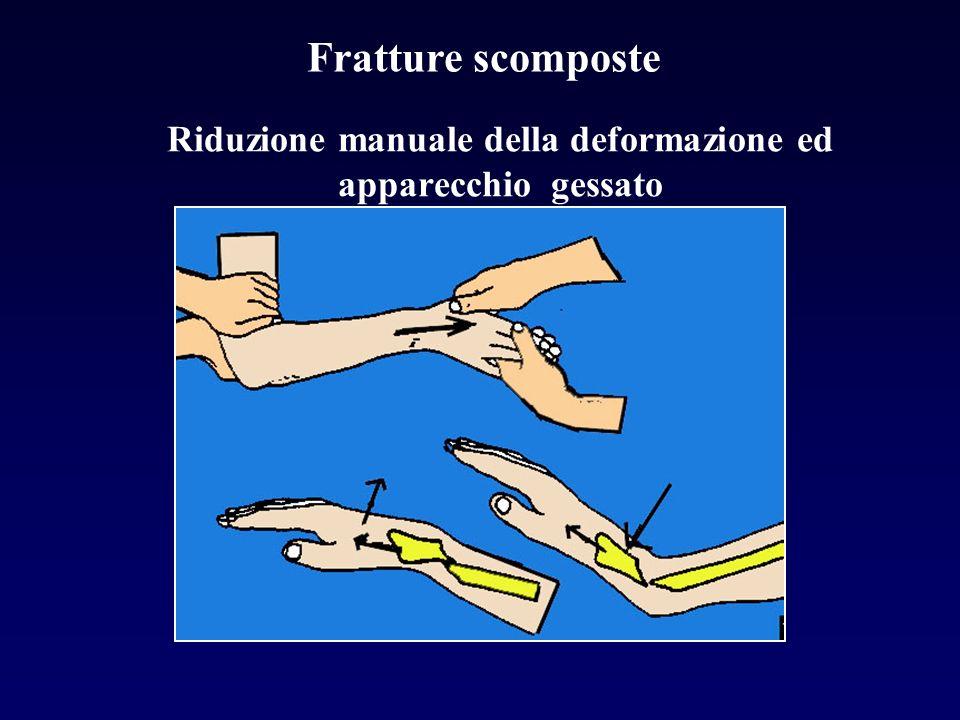 Riduzione manuale della deformazione ed apparecchio gessato Fratture scomposte