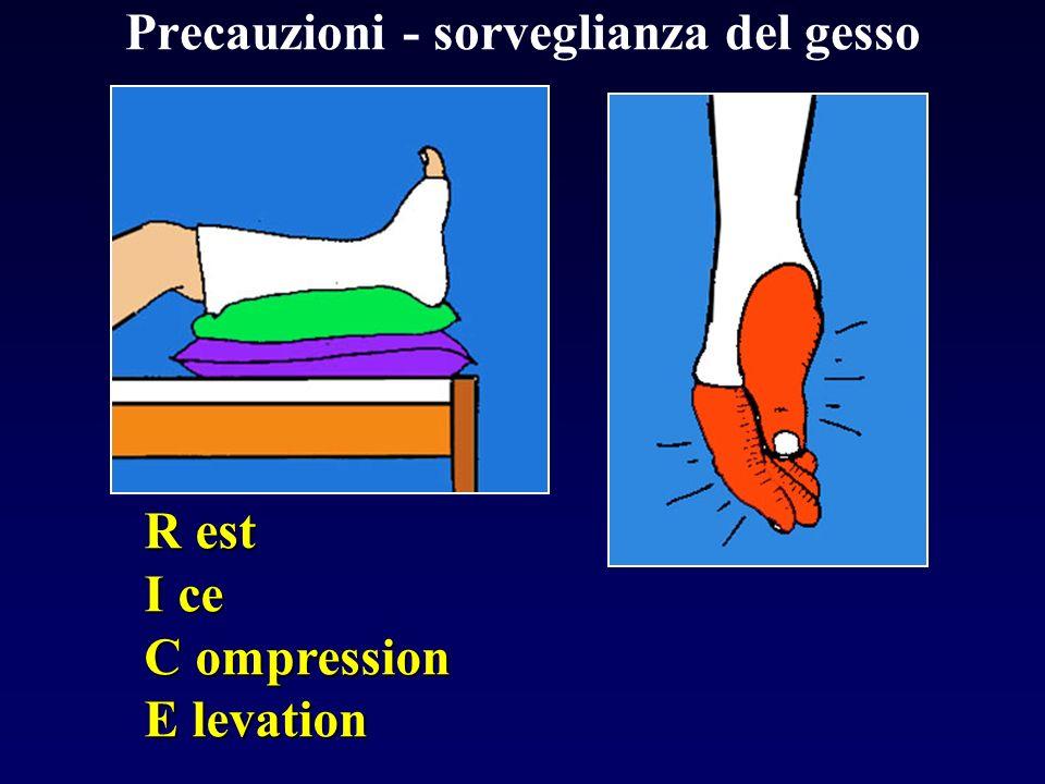 Precauzioni - sorveglianza del gesso R est I ce C ompression E levation