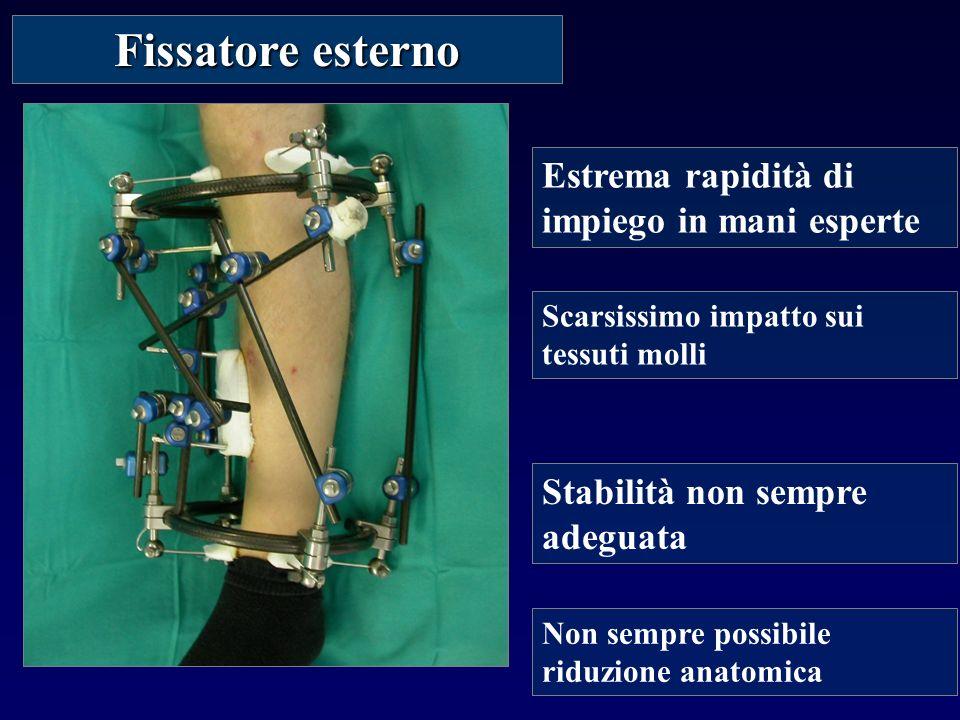 Fissatore esterno Estrema rapidità di impiego in mani esperte Non sempre possibile riduzione anatomica Stabilità non sempre adeguata Scarsissimo impatto sui tessuti molli