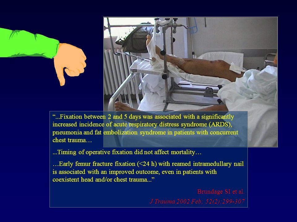 Opzioni chirurgiche Buona stabilizzazione della frattura Buona stabilizzazione della frattura Ridotta invasività chirurgica Ridotta invasività chirurgica Alesaggio ??.
