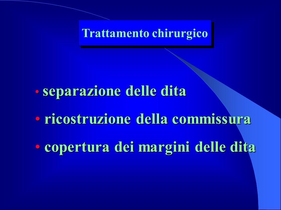 separazione delle dita separazione delle dita ricostruzione della commissura ricostruzione della commissura copertura dei margini delle dita copertura