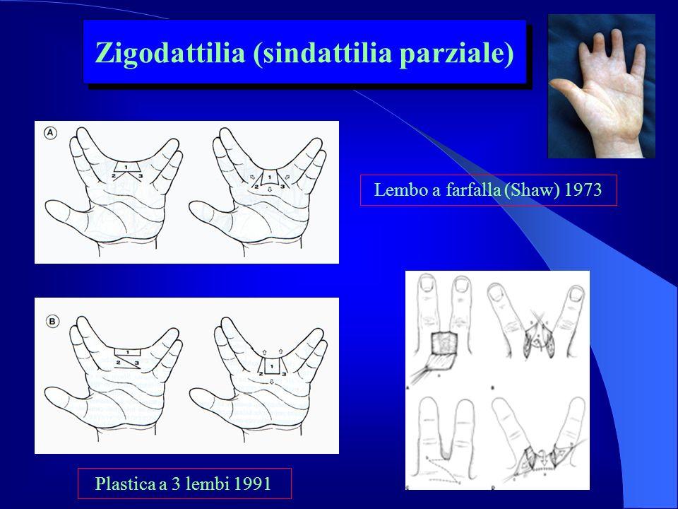 Lembo a farfalla (Shaw) 1973 Plastica a 3 lembi 1991