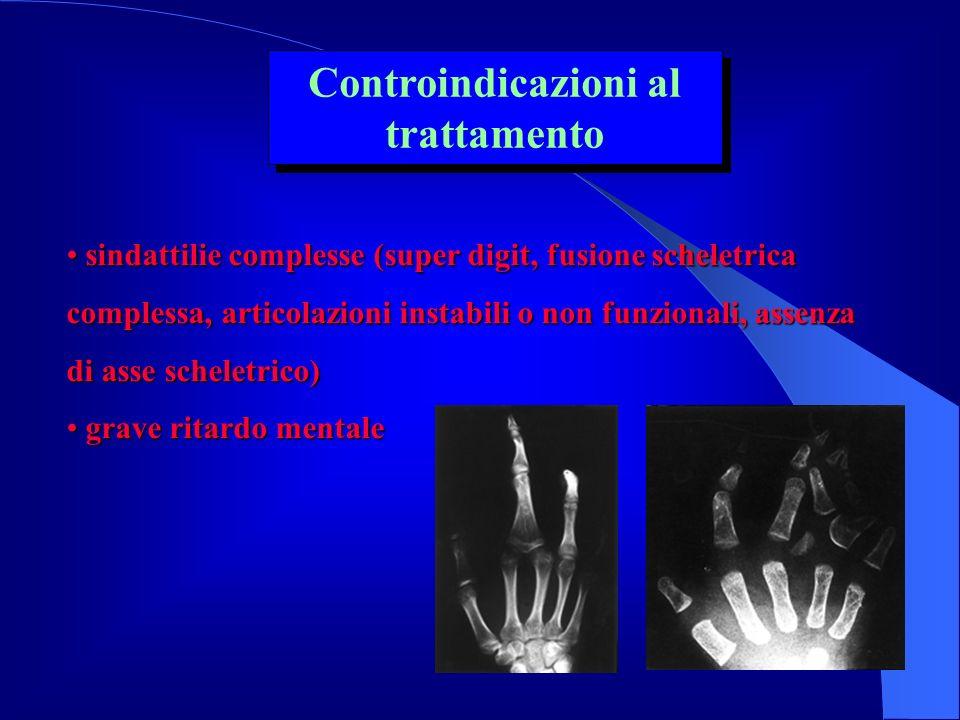 sindattilie complesse (super digit, fusione scheletrica complessa, articolazioni instabili o non funzionali, assenza di asse scheletrico) sindattilie