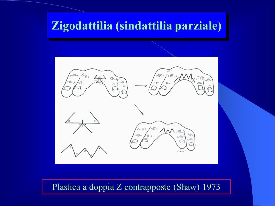 Plastica a doppia Z contrapposte (Shaw) 1973