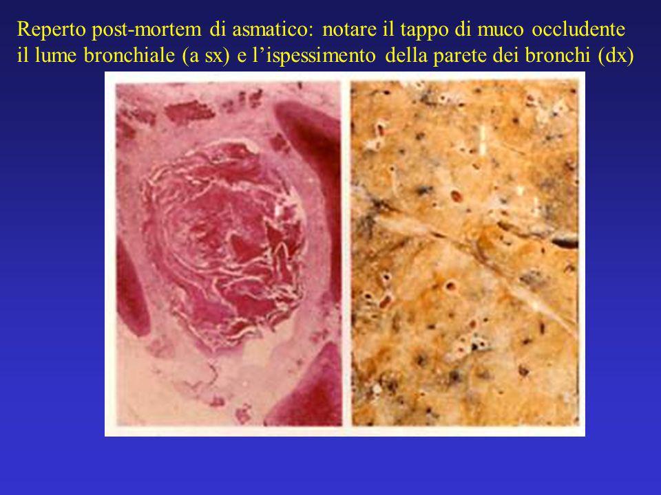 Reperto post-mortem di asmatico: notare il tappo di muco occludente il lume bronchiale (a sx) e lispessimento della parete dei bronchi (dx)