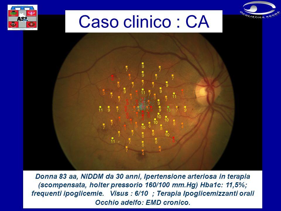 Donna 83 aa, NIDDM da 30 anni, Ipertensione arteriosa in terapia (scompensata, holter pressorio 160/100 mm.Hg) Hba1c: 11,5%; frequenti ipoglicemie.