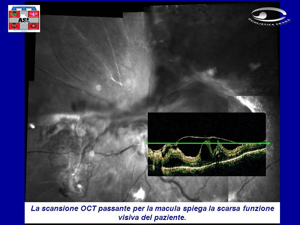 La scansione OCT passante per la macula spiega la scarsa funzione visiva del paziente.