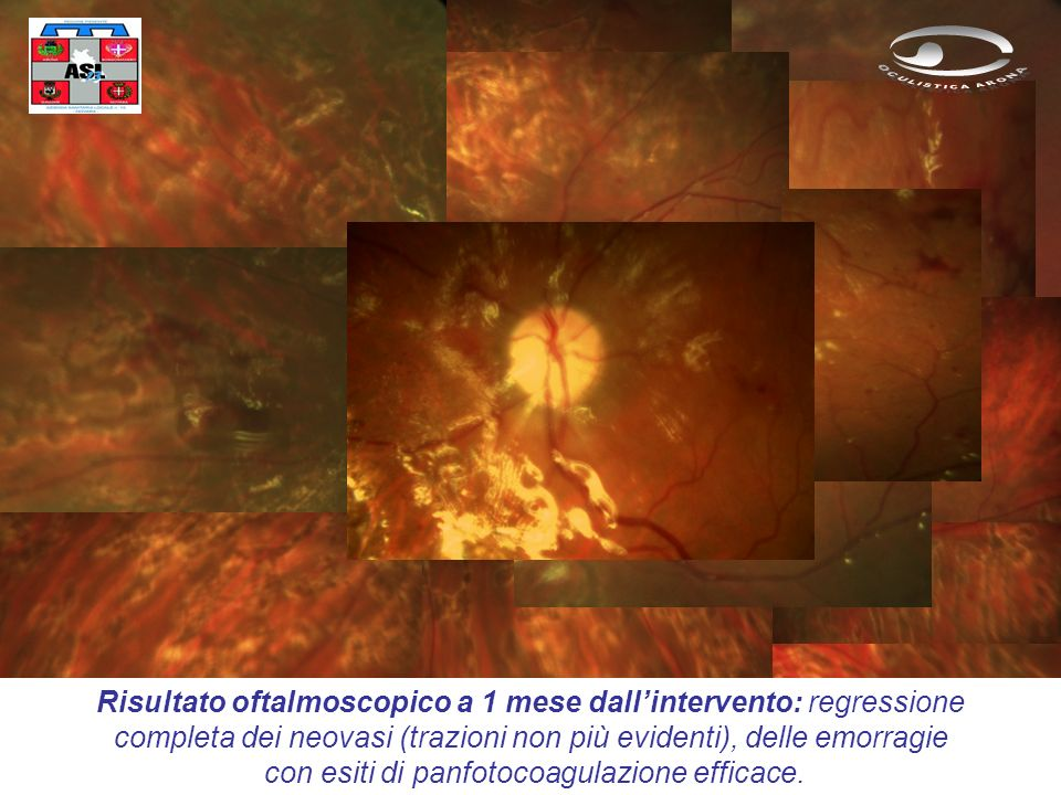 Risultato oftalmoscopico a 1 mese dallintervento: regressione completa dei neovasi (trazioni non più evidenti), delle emorragie con esiti di panfotocoagulazione efficace.
