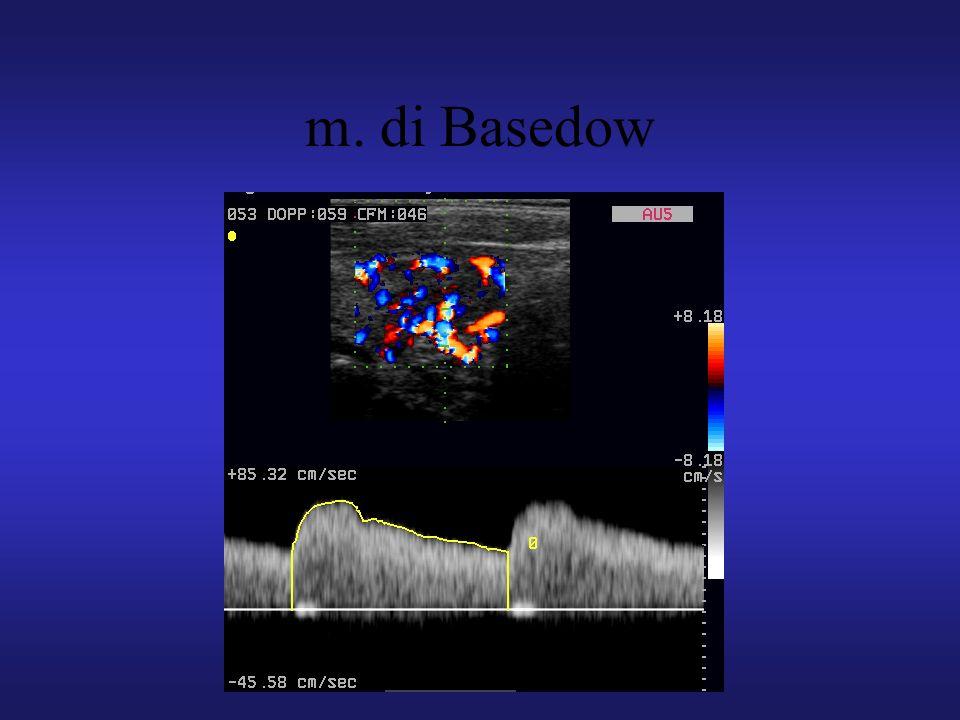 m. di Basedow
