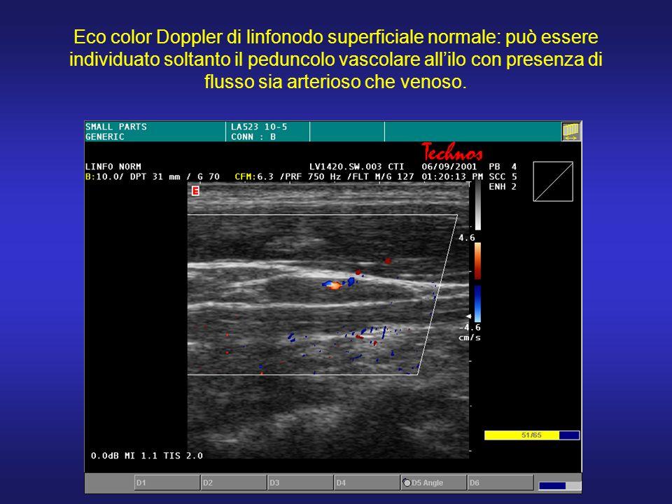 Eco color Doppler di linfonodo superficiale normale: può essere individuato soltanto il peduncolo vascolare allilo con presenza di flusso sia arterios