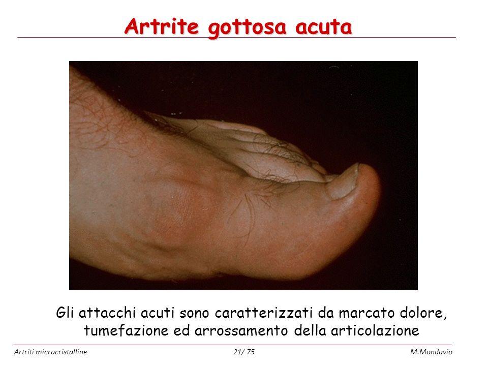 Artriti microcristallineM.Mondavio21/ 75 Artrite gottosa acuta Gli attacchi acuti sono caratterizzati da marcato dolore, tumefazione ed arrossamento d