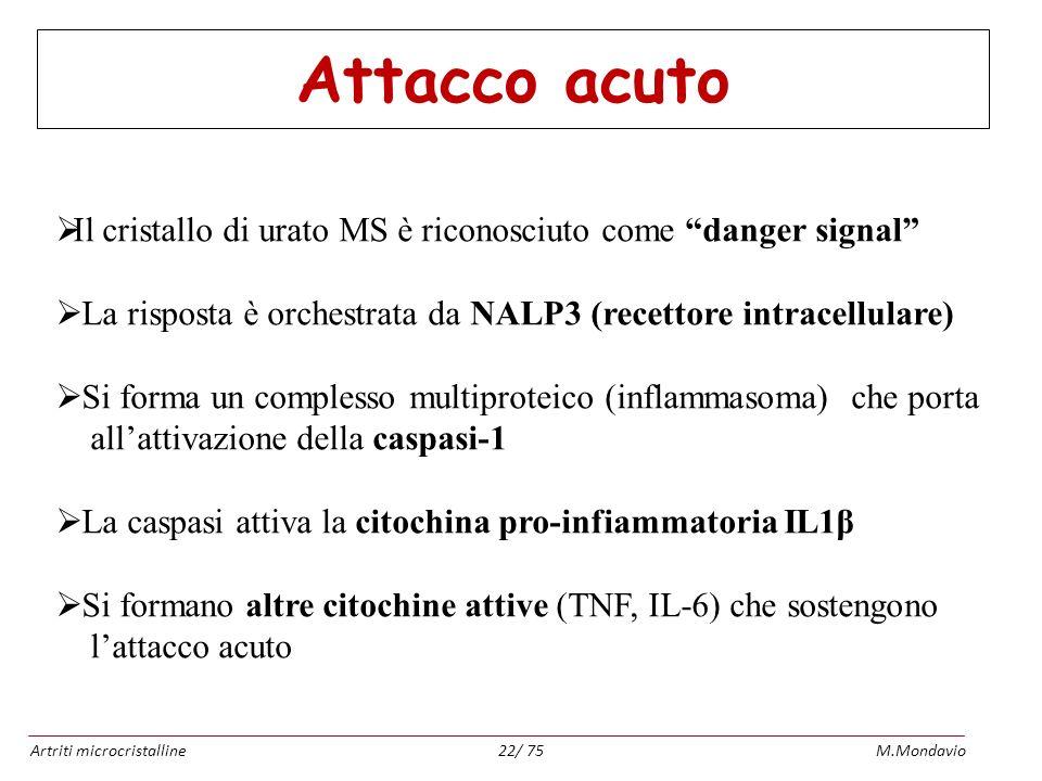 Artriti microcristallineM.Mondavio22/ 75 Attacco acuto Il cristallo di urato MS è riconosciuto come danger signal La risposta è orchestrata da NALP3 (