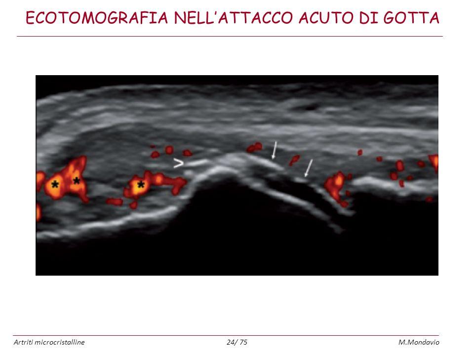 Artriti microcristallineM.Mondavio24/ 75 ECOTOMOGRAFIA NELLATTACCO ACUTO DI GOTTA