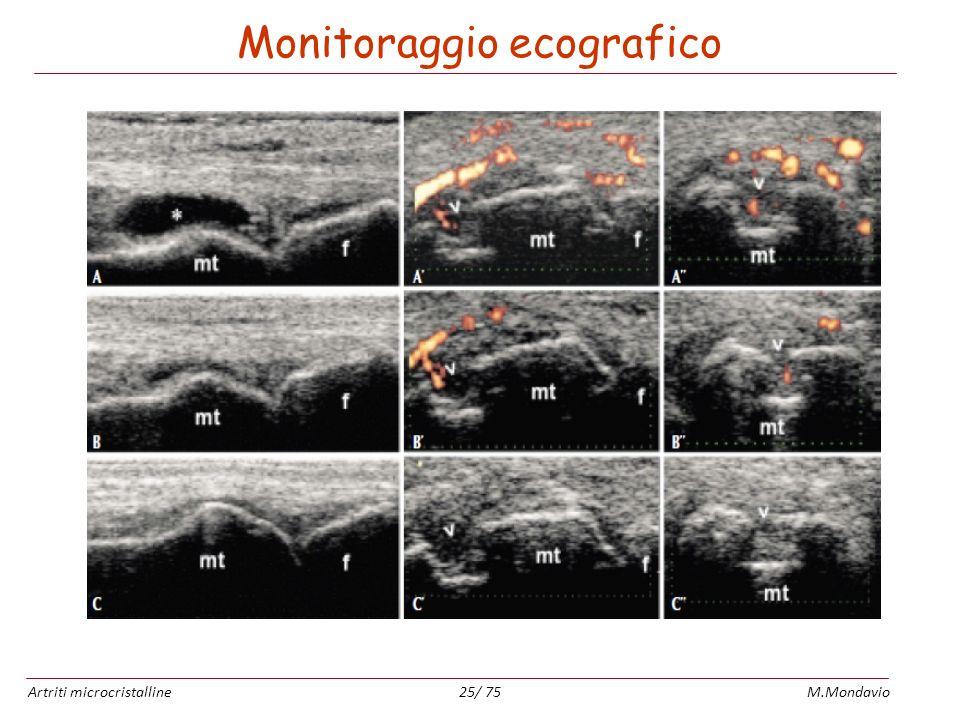 Artriti microcristallineM.Mondavio25/ 75 Monitoraggio ecografico