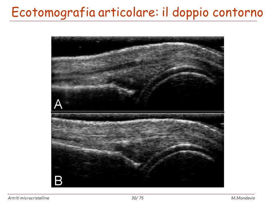 Artriti microcristallineM.Mondavio30/ 75 Ecotomografia articolare: il doppio contorno