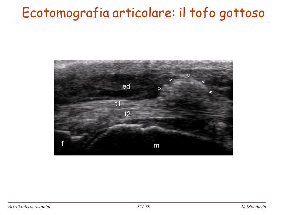 Artriti microcristallineM.Mondavio31/ 75 Ecotomografia articolare: il tofo gottoso