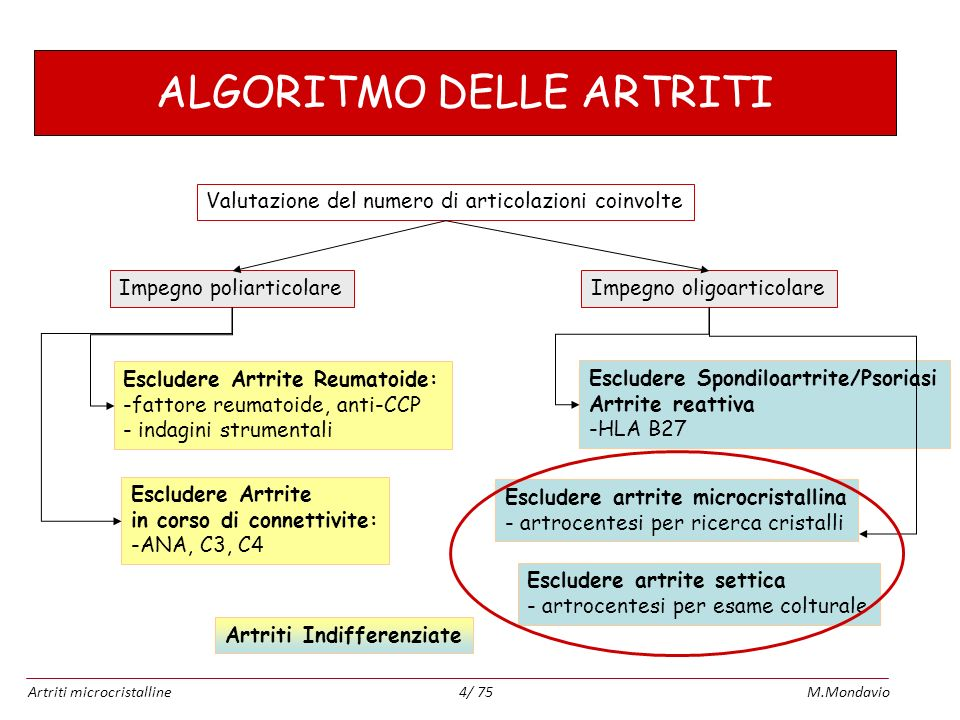 Artriti microcristallineM.Mondavio4/ 75 ALGORITMO DELLE ARTRITI Valutazione del numero di articolazioni coinvolte Impegno poliarticolareImpegno oligoa