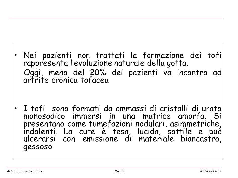 Artriti microcristallineM.Mondavio46/ 75 Gotta cronica tofacea: Nei pazienti non trattati la formazione dei tofi rappresenta levoluzione naturale dell