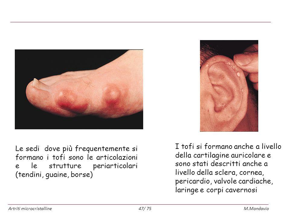 Artriti microcristallineM.Mondavio47/ 75 Tofi gottosi Le sedi dove più frequentemente si formano i tofi sono le articolazioni e le strutture periartic