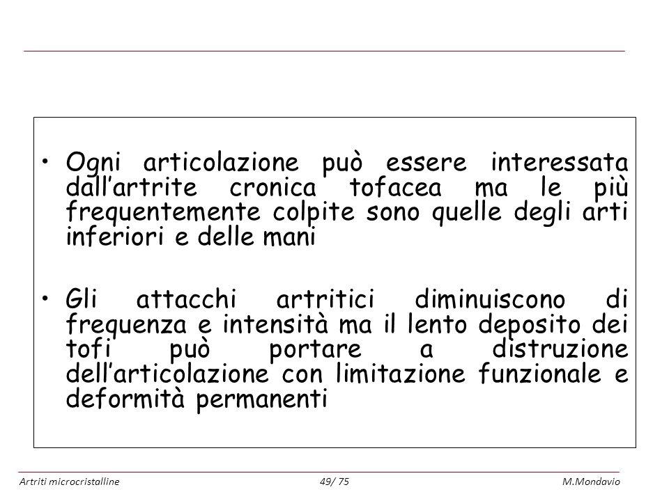 Artriti microcristallineM.Mondavio49/ 75 Artropatia uratica cronica Ogni articolazione può essere interessata dallartrite cronica tofacea ma le più fr