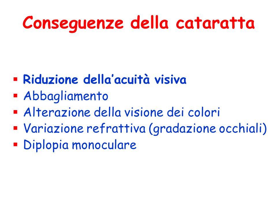Conseguenze della cataratta Riduzione dellaacuità visiva Abbagliamento Alterazione della visione dei colori Variazione refrattiva (gradazione occhiali