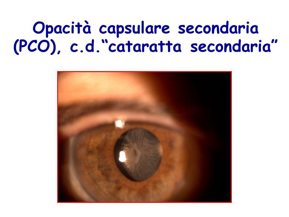 Opacità capsulare secondaria (PCO), c.d.cataratta secondaria