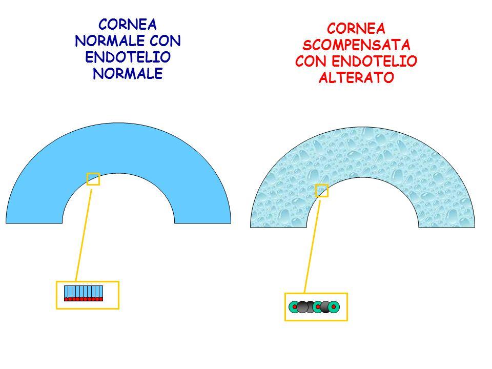 CORNEA NORMALE CON ENDOTELIO NORMALE CORNEA SCOMPENSATA CON ENDOTELIO ALTERATO