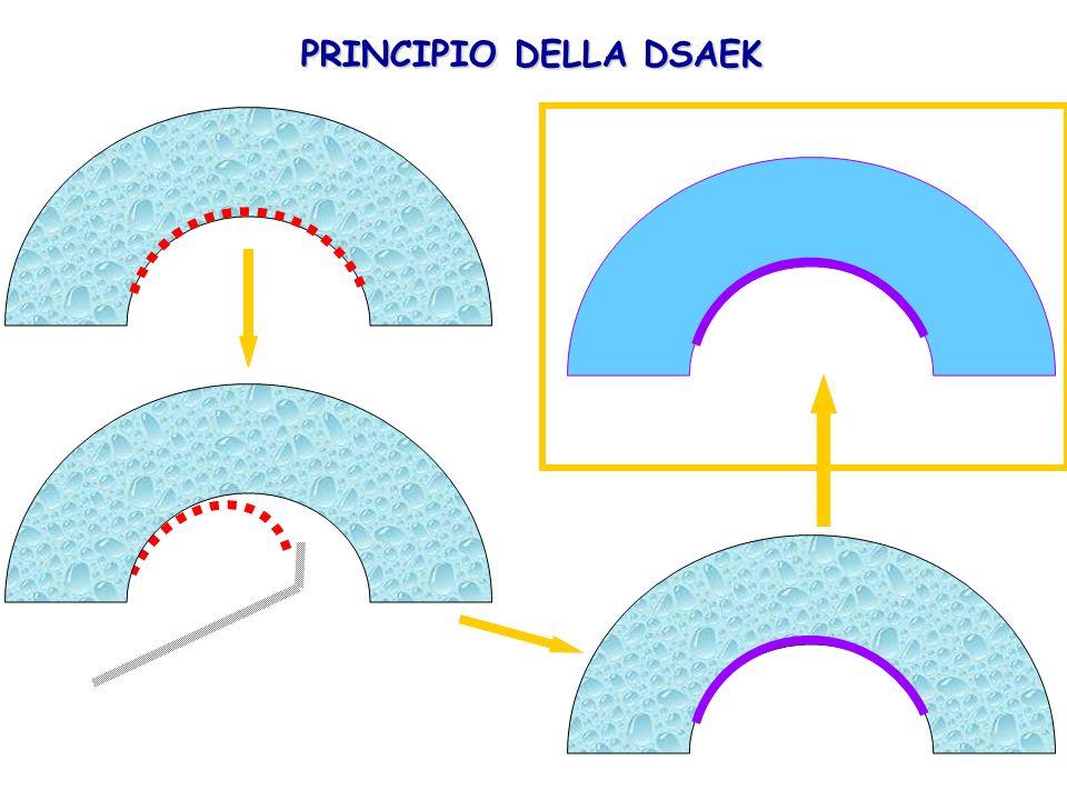 PRINCIPIO DELLA DSAEK