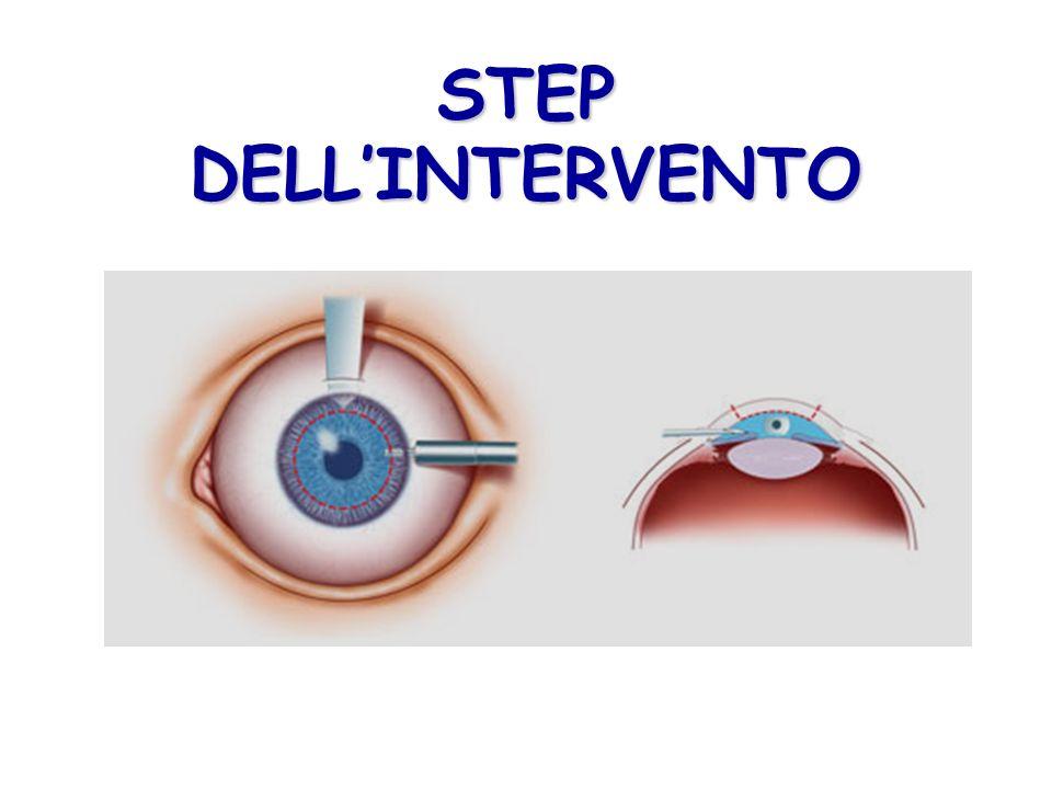 STEP DELLINTERVENTO