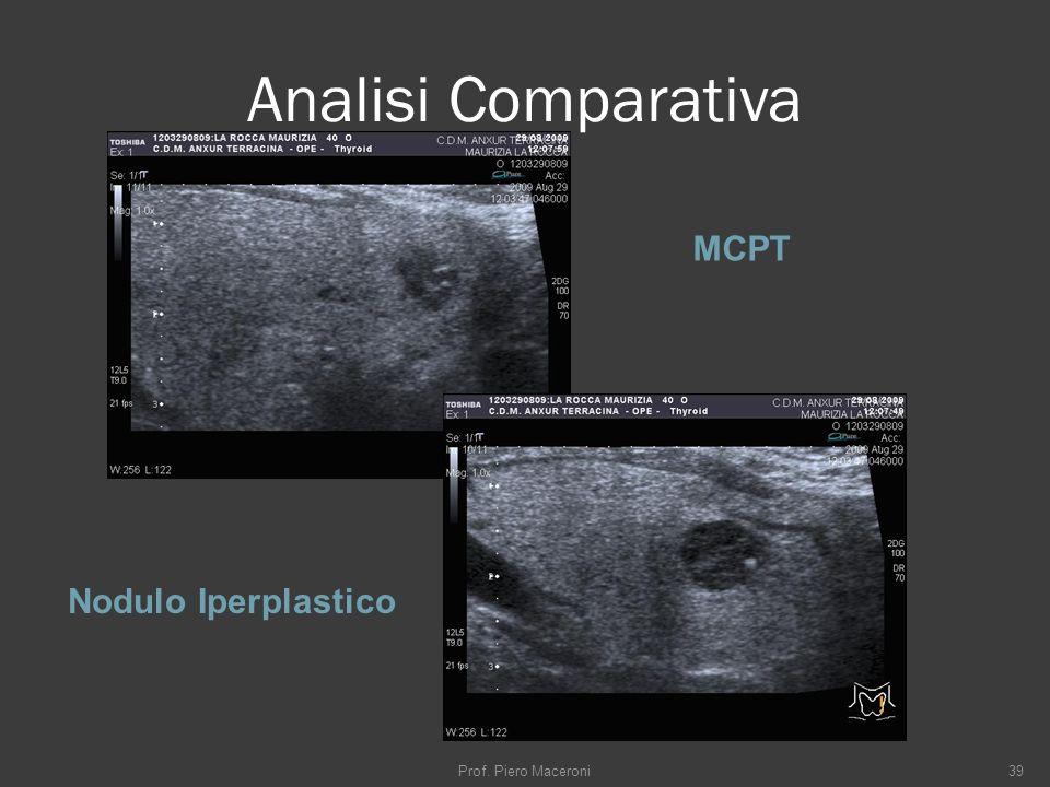 Analisi Comparativa MCPT Nodulo Iperplastico Prof. Piero Maceroni39