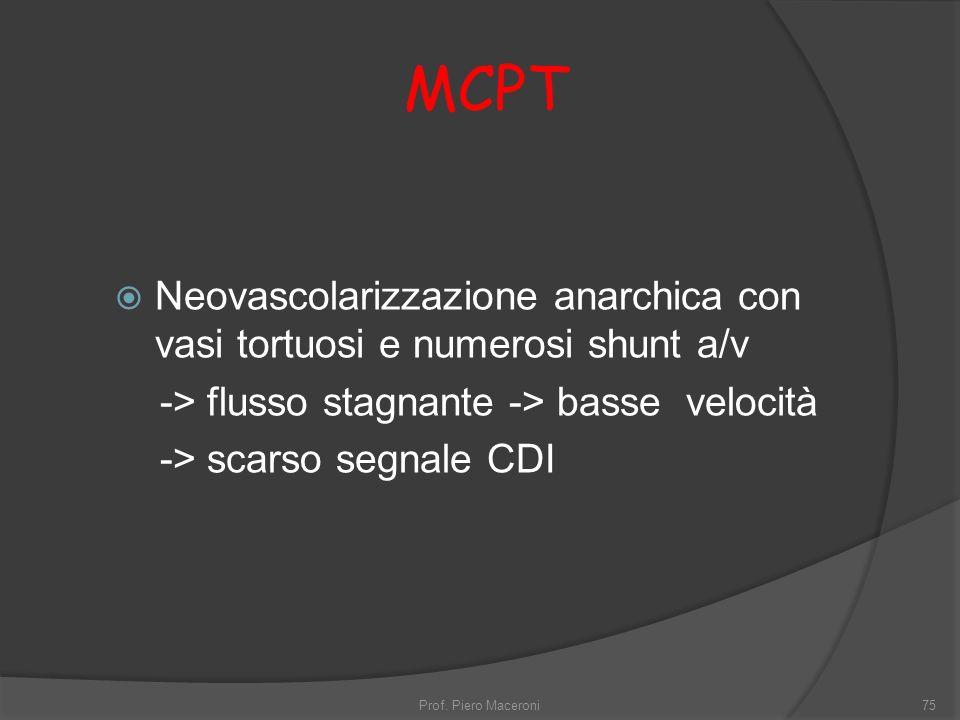 MCPT Neovascolarizzazione anarchica con vasi tortuosi e numerosi shunt a/v -> flusso stagnante -> basse velocità -> scarso segnale CDI Prof.