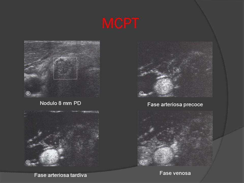 MCPT Nodulo 8 mm PD Fase arteriosa precoce Fase arteriosa tardiva Fase venosa