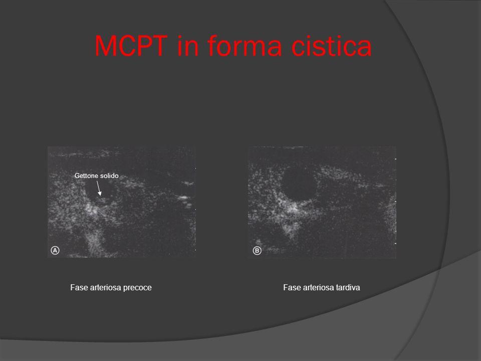 MCPT in forma cistica Gettone solido Fase arteriosa precoce Fase arteriosa tardiva