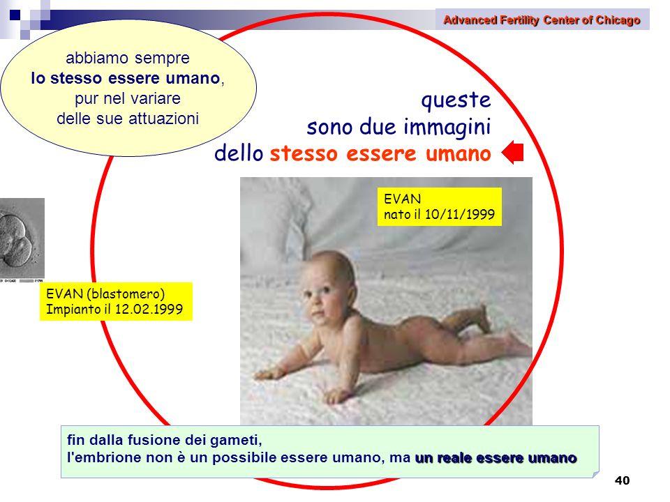 40 queste sono due immagini dello stesso essere umano EVAN (blastomero) Impianto il 12.02.1999 EVAN nato il 10/11/1999 abbiamo sempre lo stesso essere