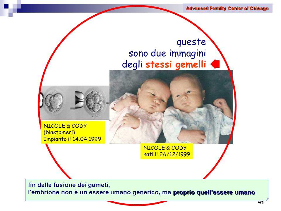 41 queste sono due immagini degli stessi gemelli NICOLE & CODY nati il 26/12/1999 fin dalla fusione dei gameti, proprio quellessere umano l'embrione n
