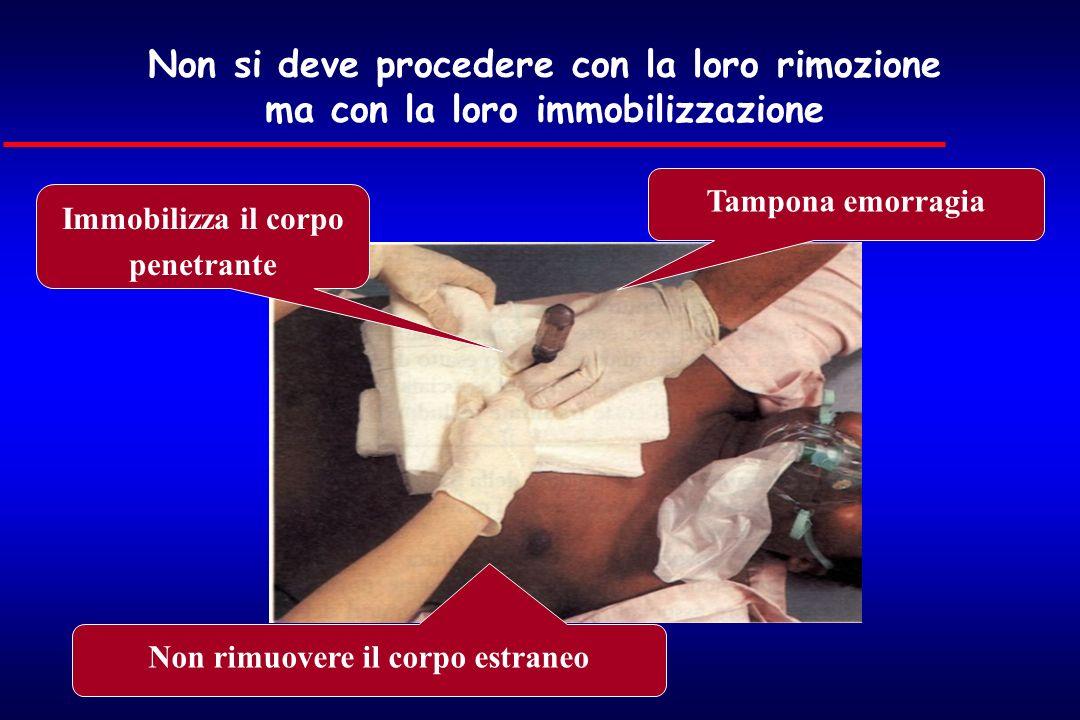Immobilizza il corpo penetrante Non rimuovere il corpo estraneo Tampona emorragia Non si deve procedere con la loro rimozione ma con la loro immobiliz