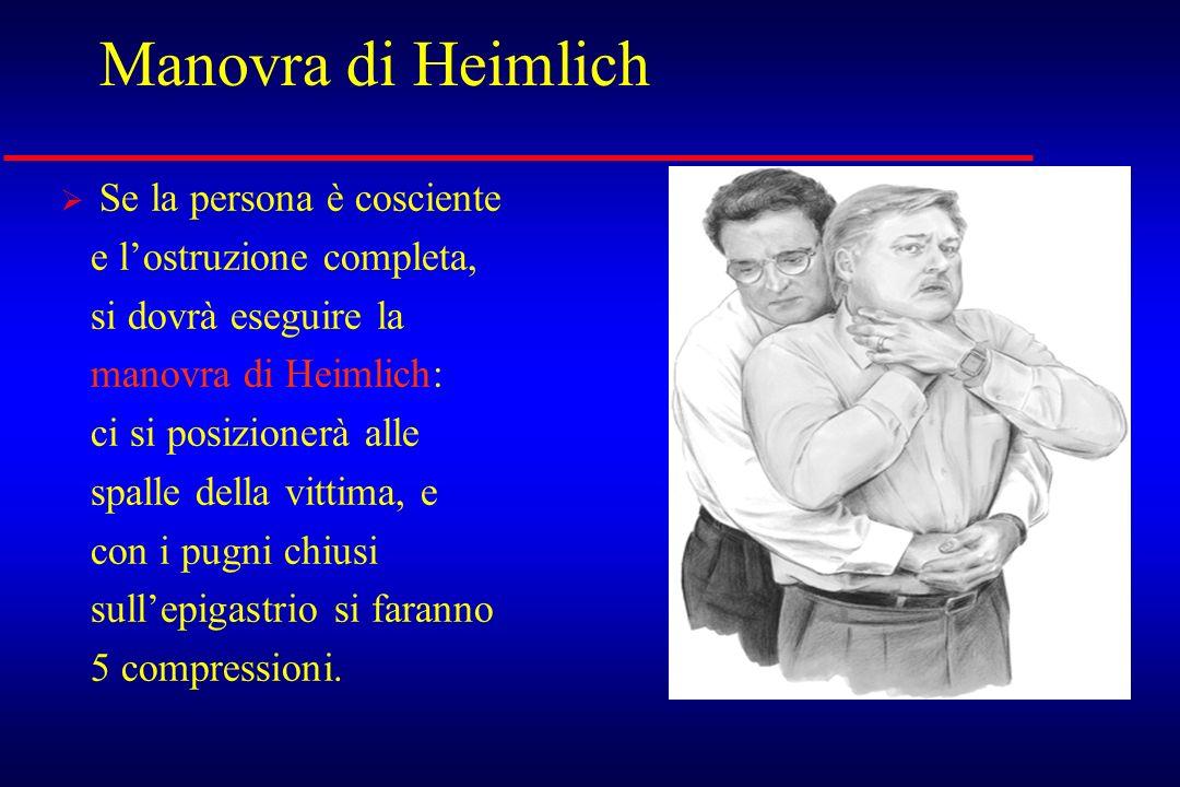Manovra di Heimlich Se la persona è cosciente e lostruzione completa, si dovrà eseguire la manovra di Heimlich: ci si posizionerà alle spalle della vi