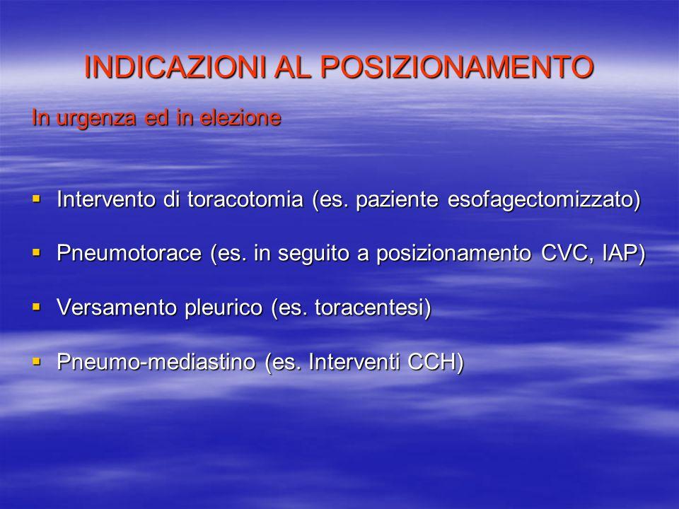 INDICAZIONI AL POSIZIONAMENTO In urgenza ed in elezione Intervento di toracotomia (es. paziente esofagectomizzato) Intervento di toracotomia (es. pazi