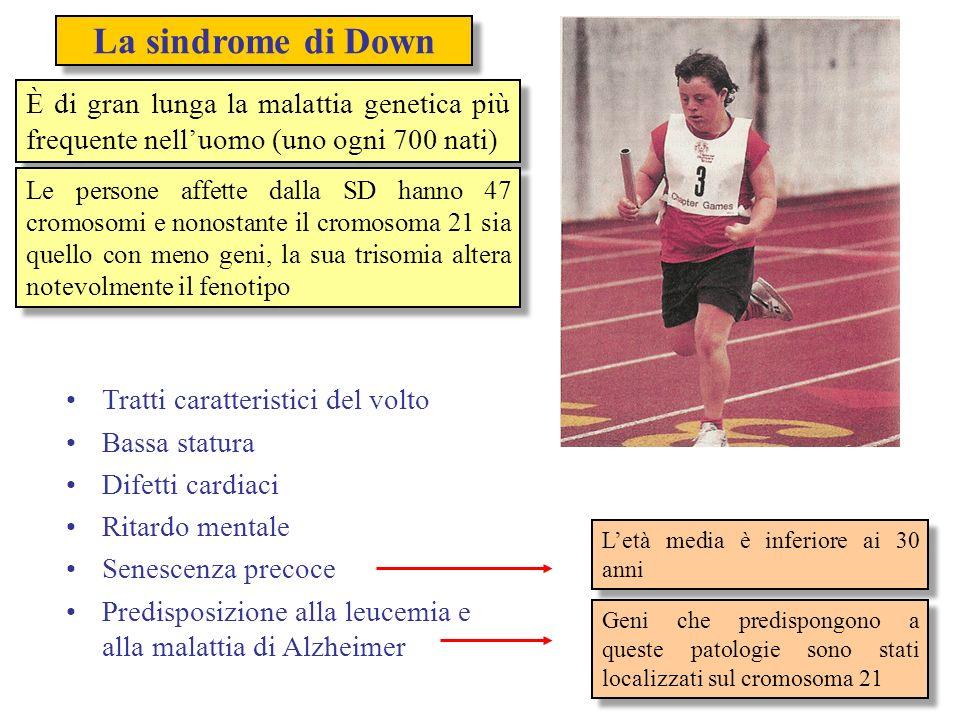 La sindrome di Down È di gran lunga la malattia genetica più frequente nelluomo (uno ogni 700 nati) Le persone affette dalla SD hanno 47 cromosomi e n