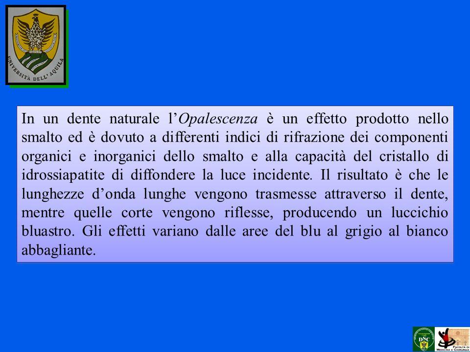 In un dente naturale lOpalescenza è un effetto prodotto nello smalto ed è dovuto a differenti indici di rifrazione dei componenti organici e inorganic