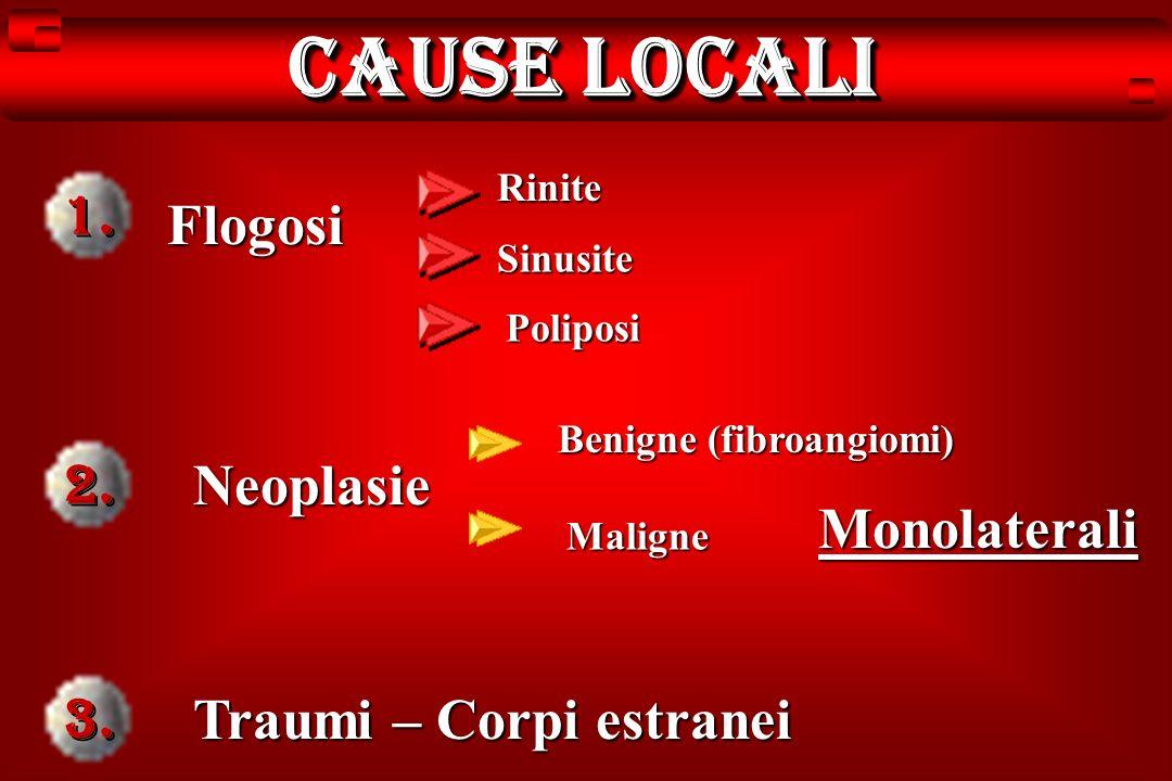 Cause locali Neoplasie Flogosi Rinite Sinusite Poliposi Benigne (fibroangiomi) Maligne Traumi – Corpi estranei Monolaterali 1. 2. 3.