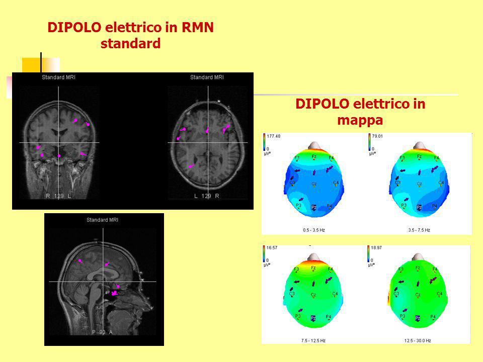 DIPOLO elettrico in RMN standard DIPOLO elettrico in mappa